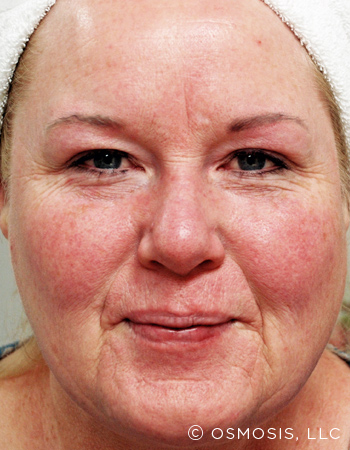 Rosacea Before Image